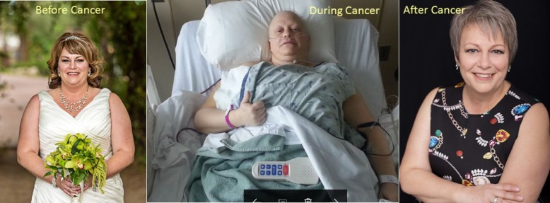 Before During After Cancer