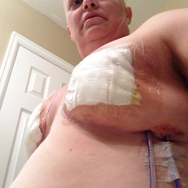 A few days post-op with drains. OUCHIE